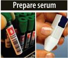 Prepare Serum
